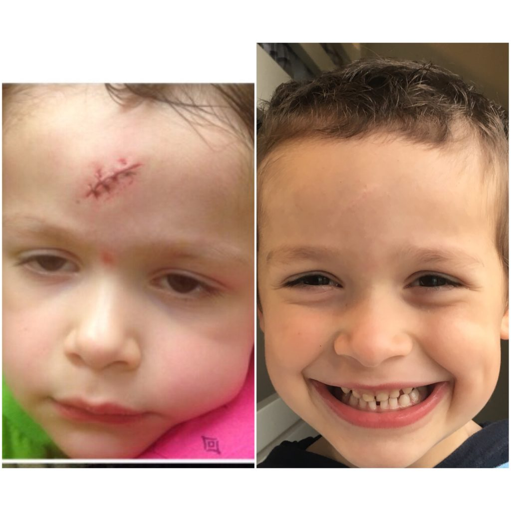 Sawyer Maddox, left, at three, and right, after treatment,at five